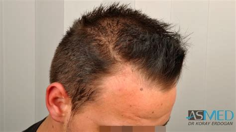 dr yates fue cost per graft asmed hair transplant results gallery norwood 2 dr