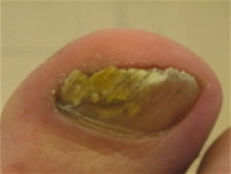 infected nail bed fungal nail infection 1