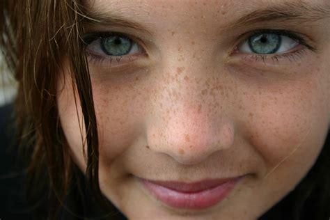 Wajah Di cara mengobati dan menghilangkan flek hitam di wajah