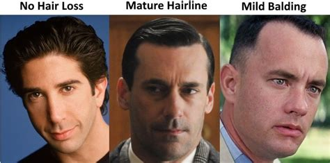 different types of receding hairlines choosing an fue clinic in europe hair palace forum by and for hair loss patients