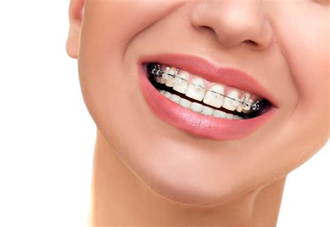 Bonia Bn834 Ceramics Whe For what should i expect when getting braces put on my teeth