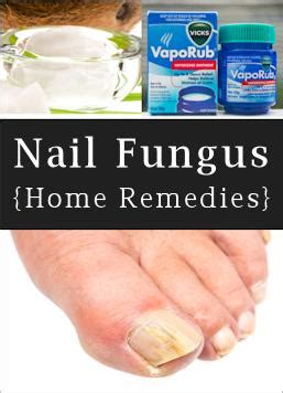home remedies for toenail fungus diy cozy home