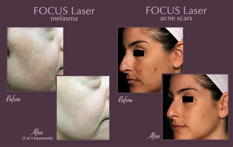 before picosure treatments and 2 weeks after my best skin rejuvenation brisbane aesthetic dermatologist