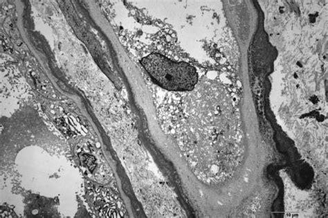 cadenas ligeras in english proteinuria y falla renal