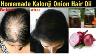 kalonji for hair growth hair care homemade kalonji onion hair oil diy hair