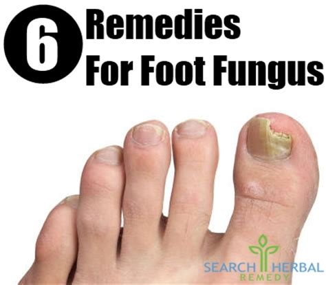 home remedies for foot fungus 6 remedies for foot fungus treatments cure for