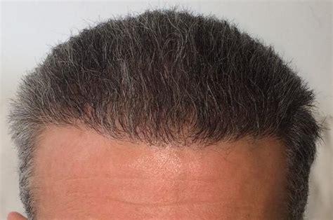 safest hair transplants new hair line made with fue safe method hair transplant