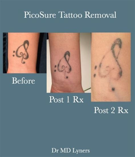tattoo removal regulations by state uberskin health clinic in londonderry uk