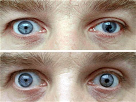 Contact Lens For Blind Eye Prosthetic Contact Lenses Allaboutvision Com