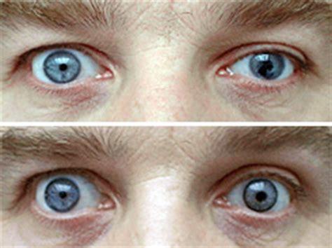prosthetic contact lenses for light sensitivity prosthetic contact lenses allaboutvision com