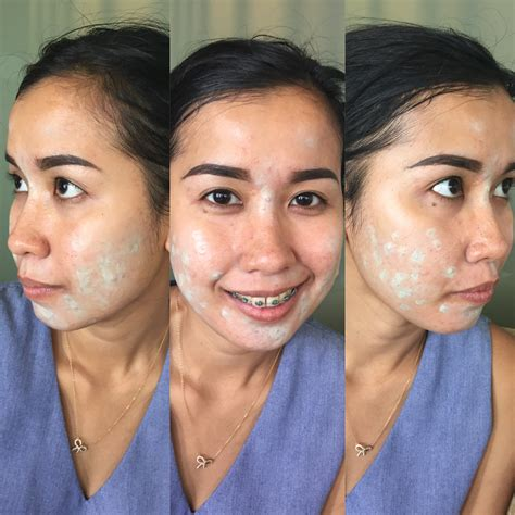 Pelembab Drugstore Untuk Kulit Sensitif makeup untuk kulit berjerawat ninneta