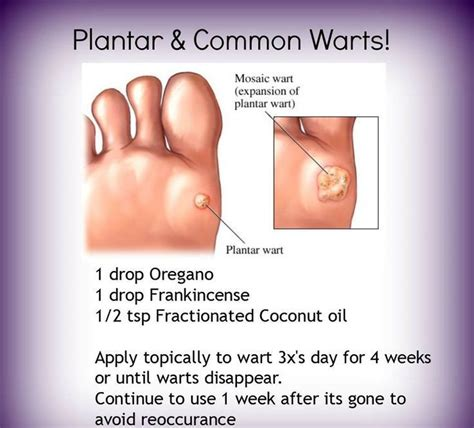 220 Ber 1 000 Ideen Zu Plantar Wart Removal Auf Pinterest How To Treat A Planters Wart