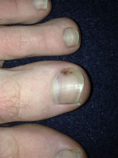 toe cancer cancer in the toenail at candida dysbiosis forum topic 2175774