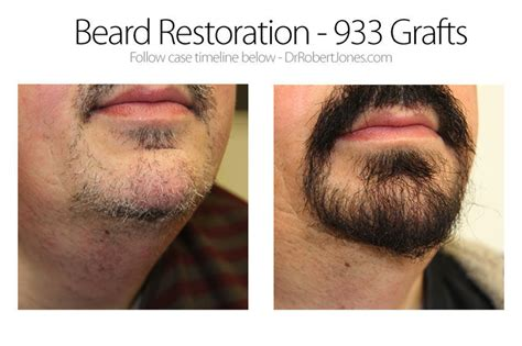 sideburn transplant cost beard hair transplant before and after gallery denver