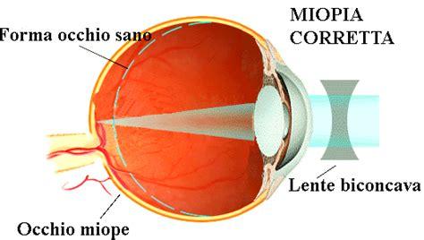 mal di testa occhio sinistro retinopatia miopica iapb italia onlus