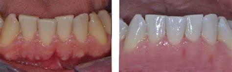 perossido di idrogeno uso interno sbiancamento denti costo sbiancamento