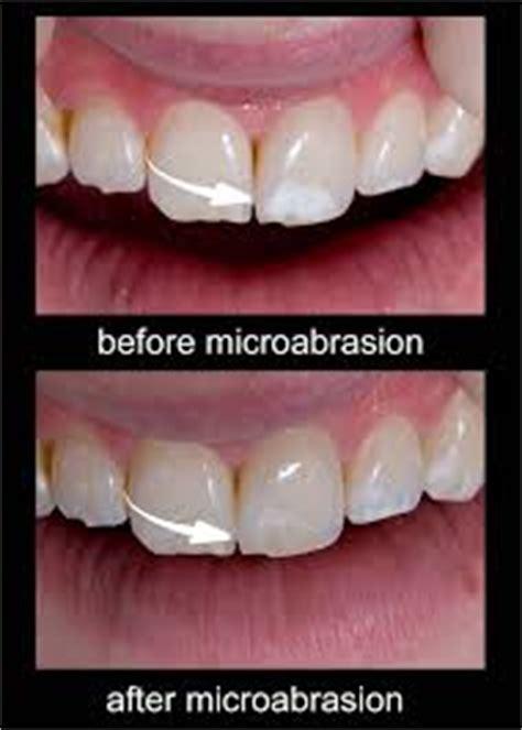 microabrasion  york thorpe dental group