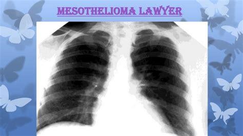 Mesothelioma Lawyer Directory - mesothelioma lawyer