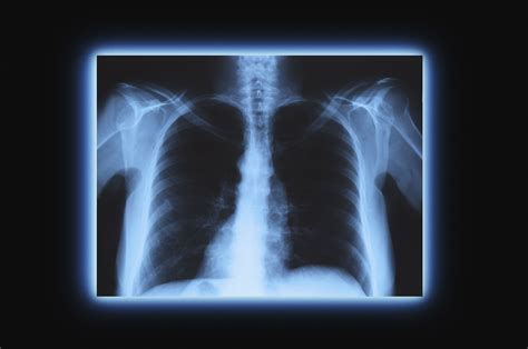 x ray x ray definition and properties x radiation