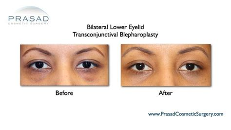 Do They Make Botox For Bags by Eye Bags Surgery Before And After Prasad Cosmetic