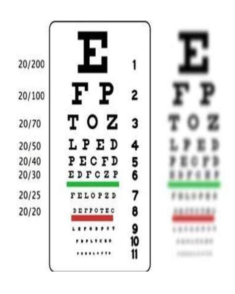 ambliopia test learn about strabismus amblyopia vision conditions learn