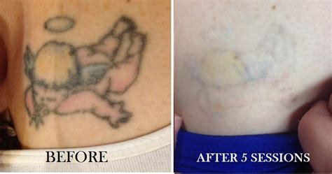 tattoo removal vancouver pics videos vancouver tattoo removal