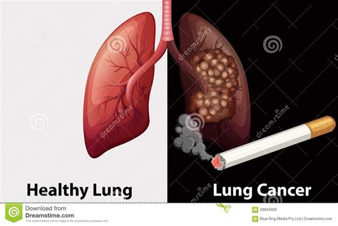 lung cancer diagram healthy lungs diagram www pixshark images