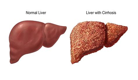 the healthy liver how to clean your liver liver cirrhosis