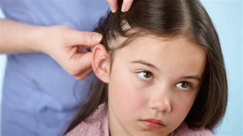 lice images 20 ways to get rid of lice health