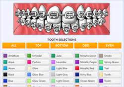 braces color chart the gallery for gt braces color wheel