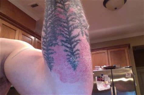 rash on tattoo scaly rash similar to acne