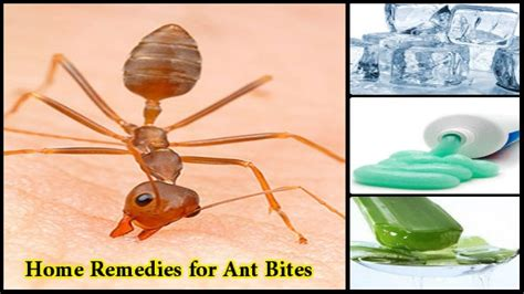 home remedies for ant bites chiti ke katne par upchar