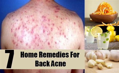 home remedies for back acne brown hairs