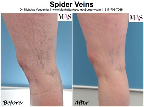 dr john layke spider vein solution dr john layke scam spider veins dr layke spider vein