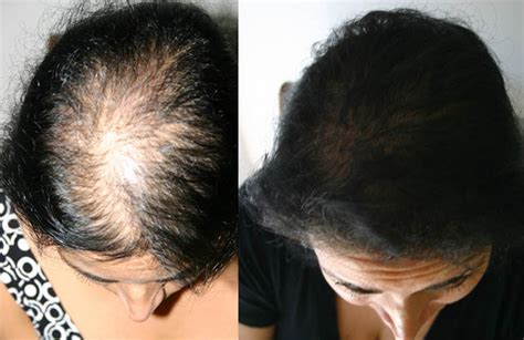 before snd after picture of hair growth in eonen female celebrity hair loss before and after hair loss