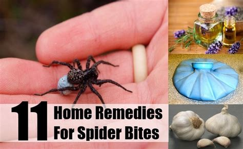 11 spider bites home remedies treatments cures