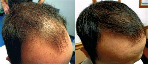 fut hong kong hair transplant hair restoration ta and orlando florida ta hair
