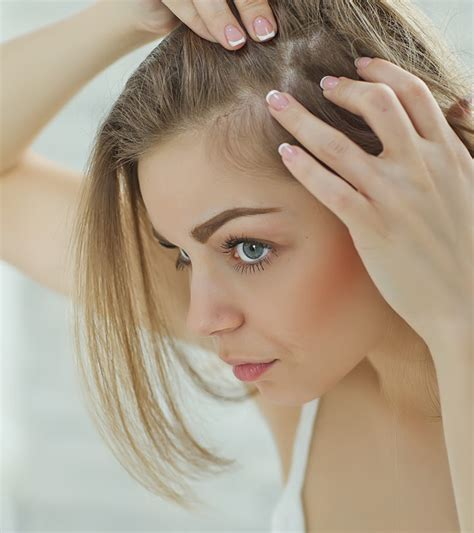 womens hair break at temple 8 simple ways to treat hair loss at the temples