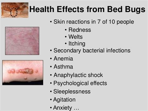 bed bug bite effects bed bug biology and research central ohio bed bug task force