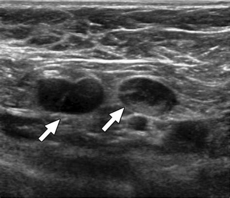 linfonodi mammari interni imaging ecografico senologia diagnostica senologia