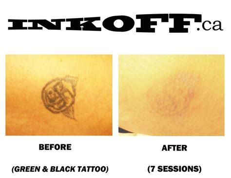 laser tattoo removal black green top 25 ideas about inkoff laser removal on