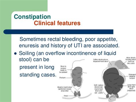 What Is Incontinence Of Stool by Constipation