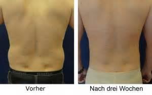 fettabsaugen vorher nachher bilder vorher nachher fettabsaugung mann r 252 ckenansicht
