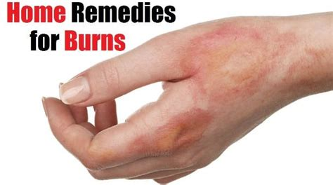 home remedies for burns treatment