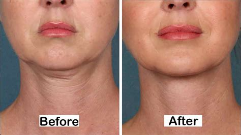 best cream for sagging jawline how to get rid of neck fat without surgery 5 natural