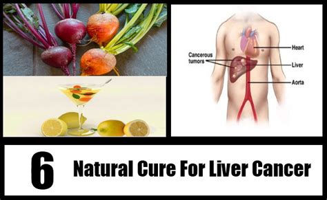 Liver Detox For Cancer Patients by Top 6 Cure For Liver Cancer How To Cure Liver
