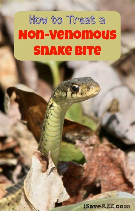 how to a that bites how to treat a non venomous snake bite isavea2z