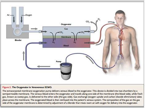 omi refractories jeffylikeschocolat extracorporeal membrane oxygenation