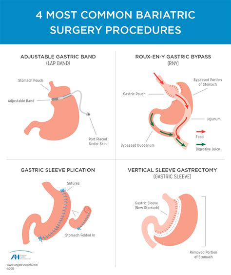Guide To Types Of Weight Loss Surgery Mayo Clinic | weight loss surgery in mexico tijuana bariatric