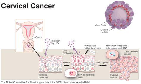 cervical cancer diagram gene expression analysis of cervical cancer progression